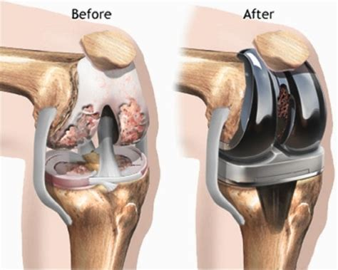 overstuffed knee joint replacement repair picture 2