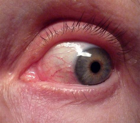 herpes simplex b symptoms picture 5