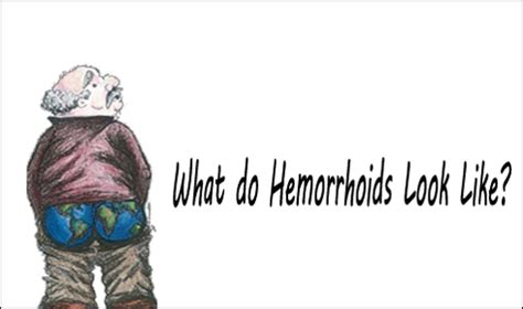 what does hemorrhoids look like picture 1
