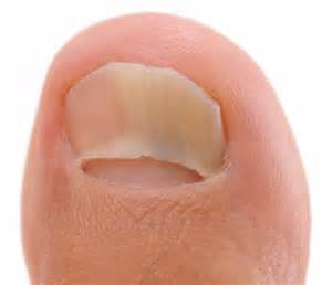 how to get rid of toenail fungus picture 7