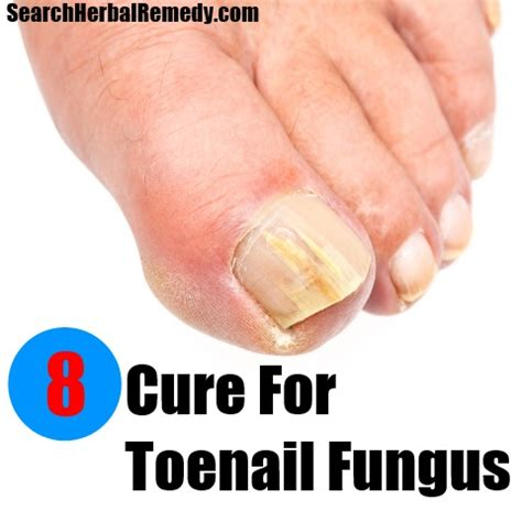 natural remedies for toenail fungus picture 5