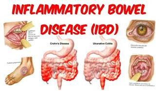inflammatory bowel syndrome picture 10