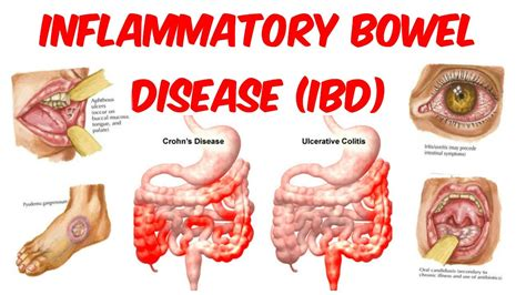 pictures inflammatory bowel disease picture 3