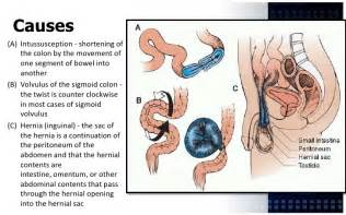 hernia bowel obstruction picture 3