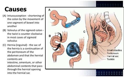 bowel obstruction symptoms picture 7