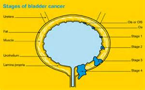 stage 4 bladder cancer treatment picture 3