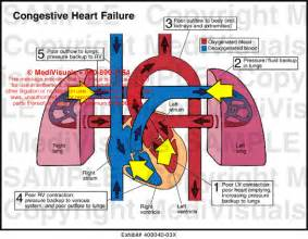 colon cleanse fainting heat picture 11