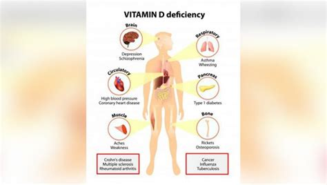 auto immune colitis plus hypothyroid plus htn diagnosis picture 5