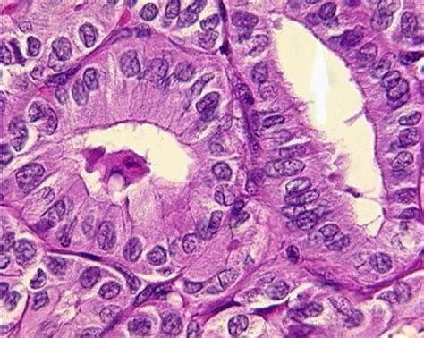 fine needle biopsy thyroid and ear picture 14