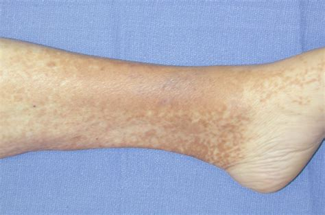 discoloration skin picture 11