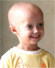 accelerated aging progeria syndrome picture 1
