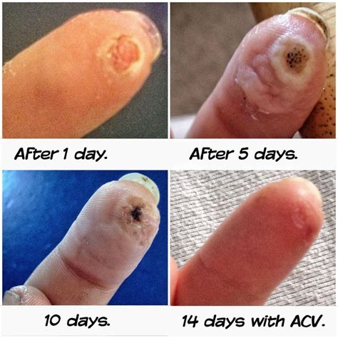 cure wart infection picture 10