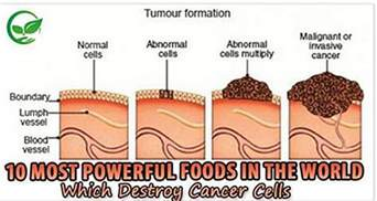squamos cell carcinoma weight loss picture 6