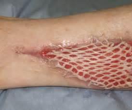 criteria and skin graft and burn picture 11