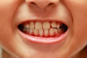 how to have healthy teeth picture 11