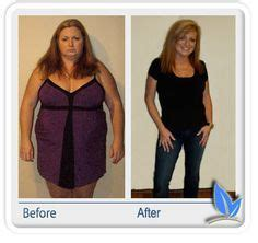 three rivers med center weight loss surgery louisa picture 5