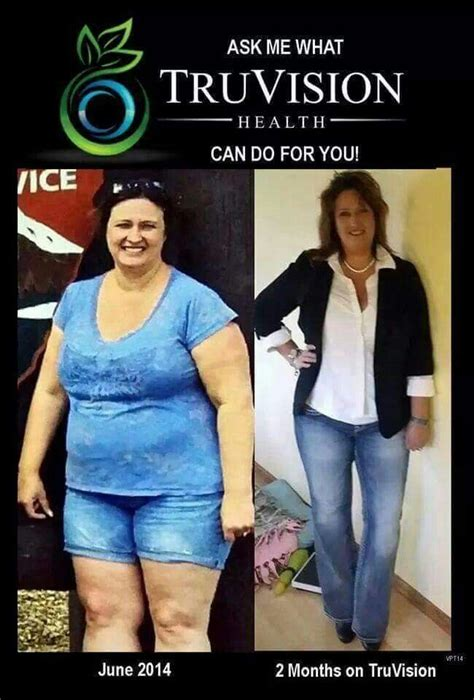 workmans comp and weight loss picture 14
