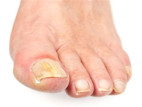 picture of toenail fungus picture 3