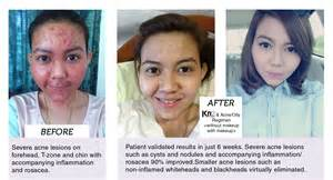 pantothenic acid acne works rate vitacure picture 10