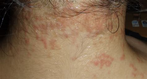 about skin rashes on the neck area picture 12