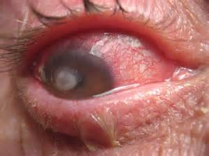 corneal herpes picture 11