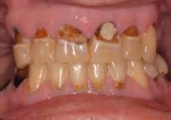 dental erosion & h whitening picture 13