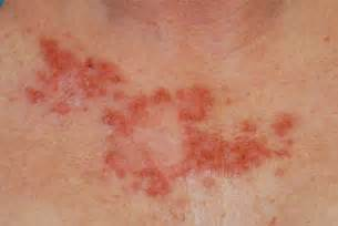 diagnosis of skin conditions picture 5