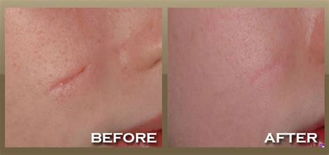 skin lasik for acne picture 7