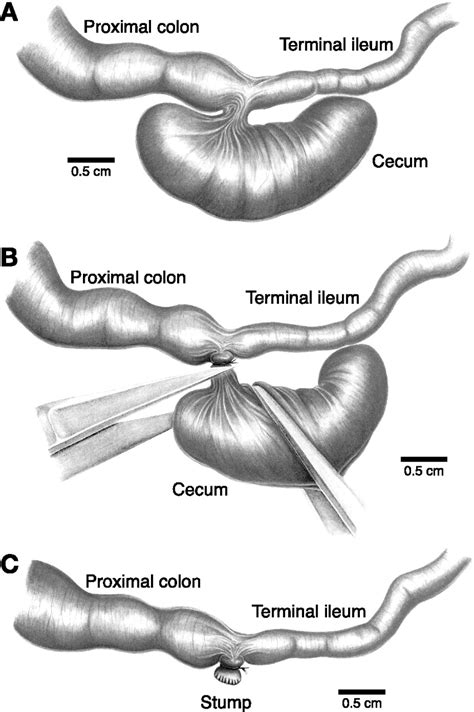 intestinal tract picture 11