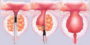 Transurethral resection of the prostate turp picture 1