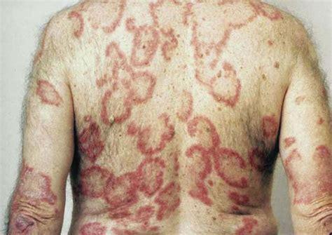 autoimmune thyroid and armpit pain picture 10