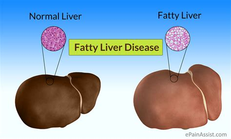causes fatty liver picture 5