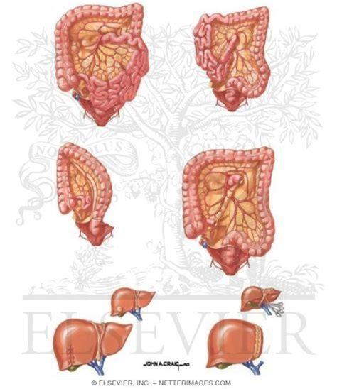 colon cancer outcome picture 11