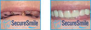 secure smile lower h picture 15