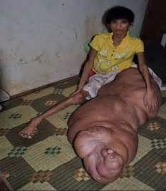 pics of largest human penis picture 3