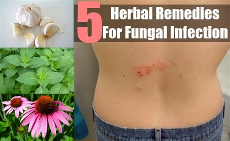 fungal herbal supplement picture 19