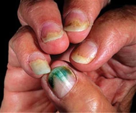 acrylic nail fungus picture 6