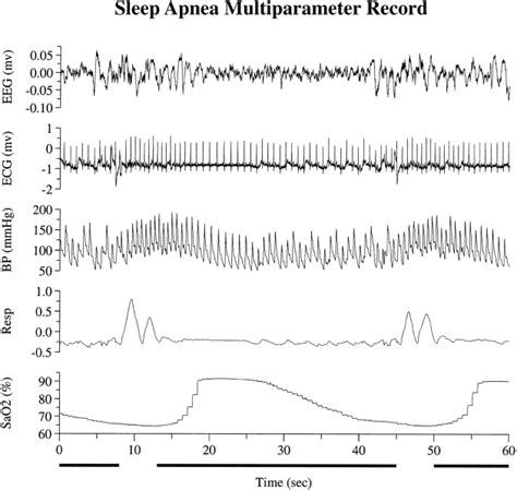 all known symptoms of sleep apnea picture 10
