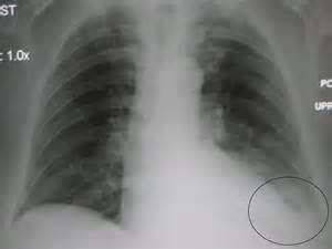 supplement causing pleural effusion picture 10