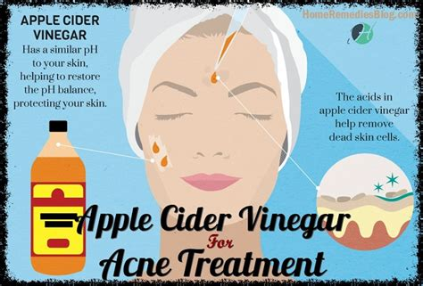 the acne cure picture 5