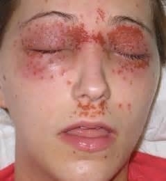 does eczema darken skin picture 6