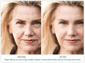 tretinoin and skin aging picture 1