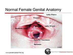 is it normal to have vaginal discharge when picture 9