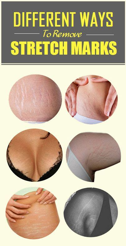 ways to remove stretch marks picture 14