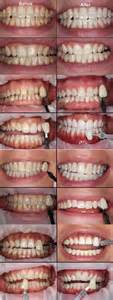 before and after h whitening picture 6