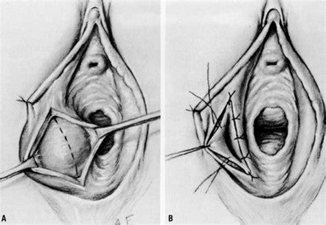 oregano oil bartholin's cyst picture 2