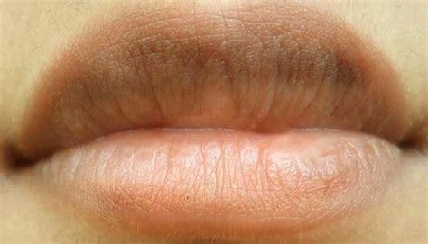 creams for lip cancer picture 5