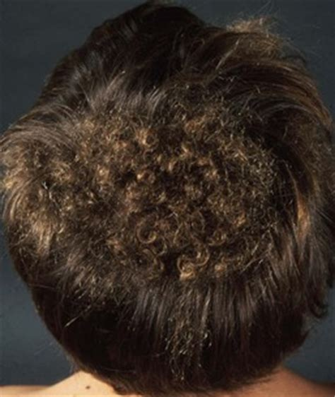 wooly hair syndrome picture 13