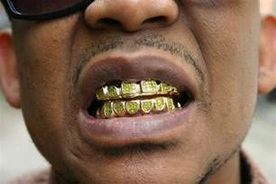 gold teeth pics picture 1