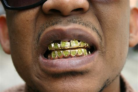 gold teeth pics picture 5